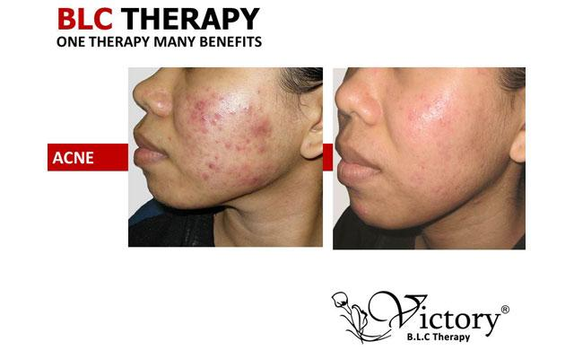 Skin Care Clinic Denpasar - Victory Bio-living Cell - Renon