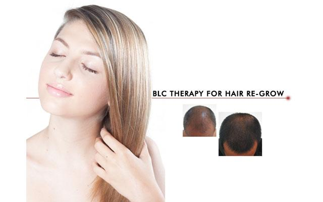 Hair Regrow Therapy - Victory Clinic Denpasar - Renon