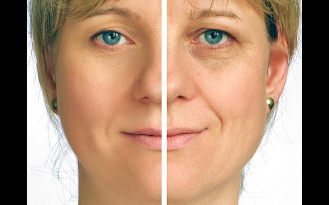 Dermoestetica Bali - Anti Aging - Before and After