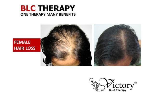 Skin Care Clinic Denpasar - Victory Bio-living Cell - Hair Loss Treatment