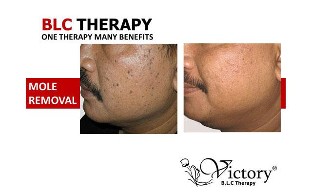 Skin Care Clinic Denpasar - Victory Bio-living Cell - Mole Removal