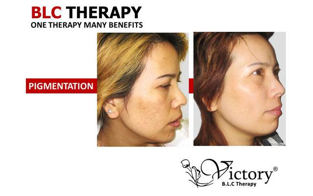 Skin Care Clinic Denpasar - Victory Bio-living Cell - Pigmentation Treatment